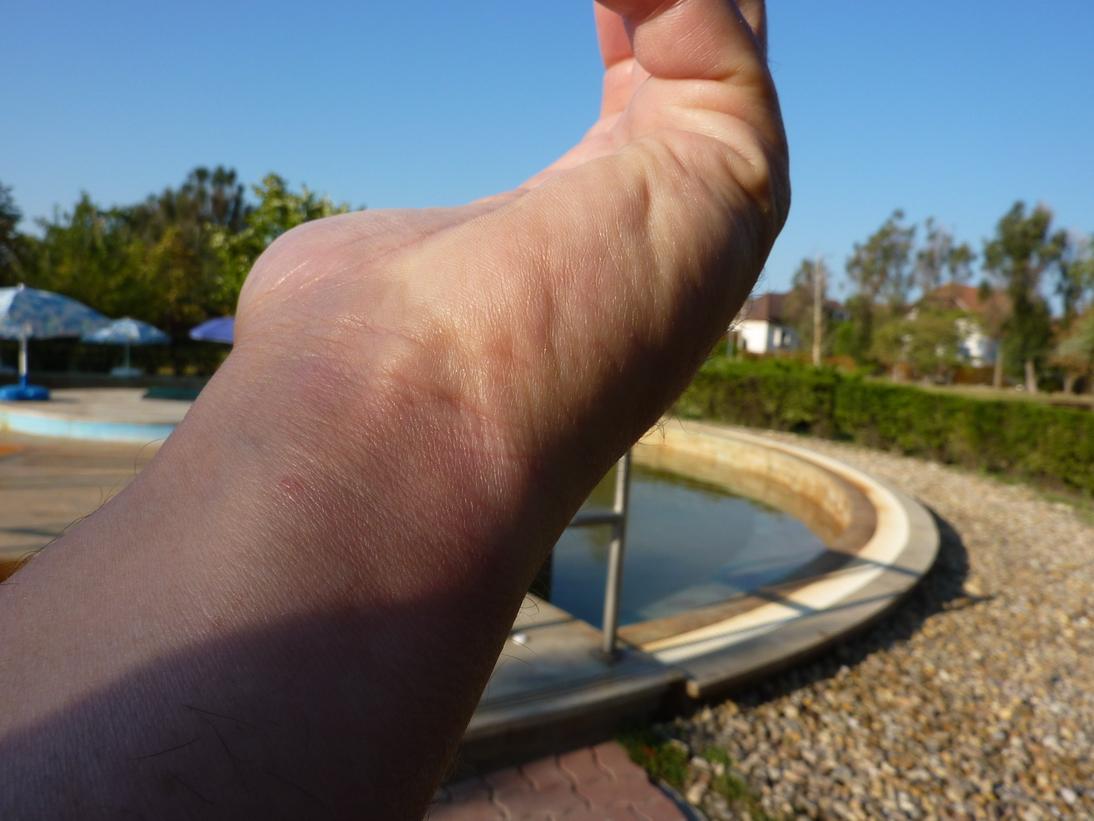 kezelés a kaukázusi ásványvizekben sárral pikkelysömörhöz)